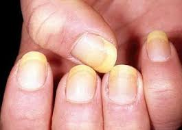 White Spots On Nail Beds by 44 Best Nail Diseases Images On Pinterest Fingernail Health