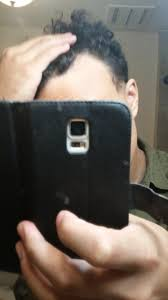 Propecia Shedding 2 Weeks by 23 Y O 3 Months On Finasteride Update Pics Included Tressless
