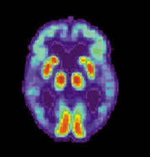 Protective Role For Copper In Alzheimer's Disease